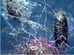 El implante del chip se llama ahora proyecto cambio climatico. Morgellons24
